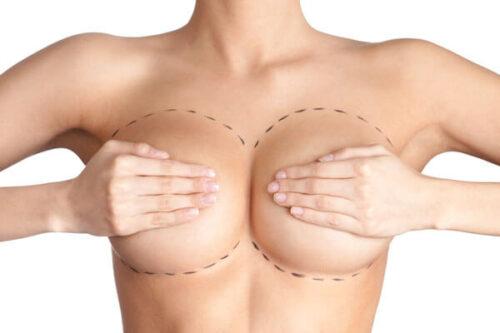 Review ưu nhược điểm của các phương pháp nâng ngực phổ biến hiện nay
